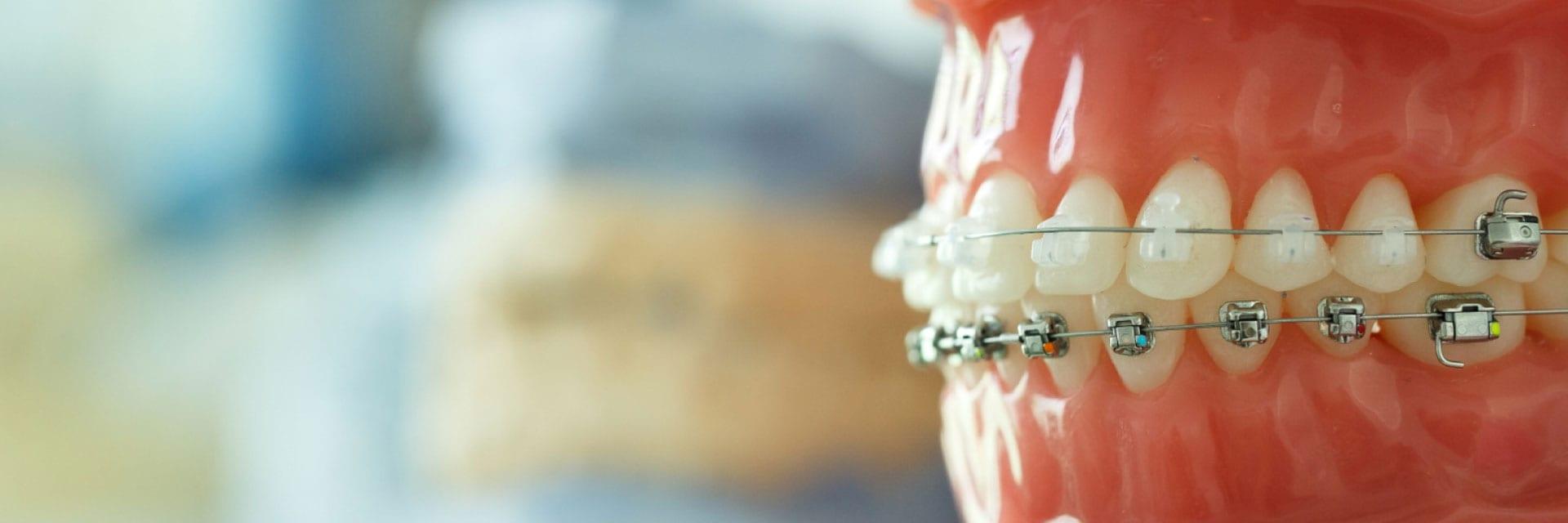 Myths About Braces Explained