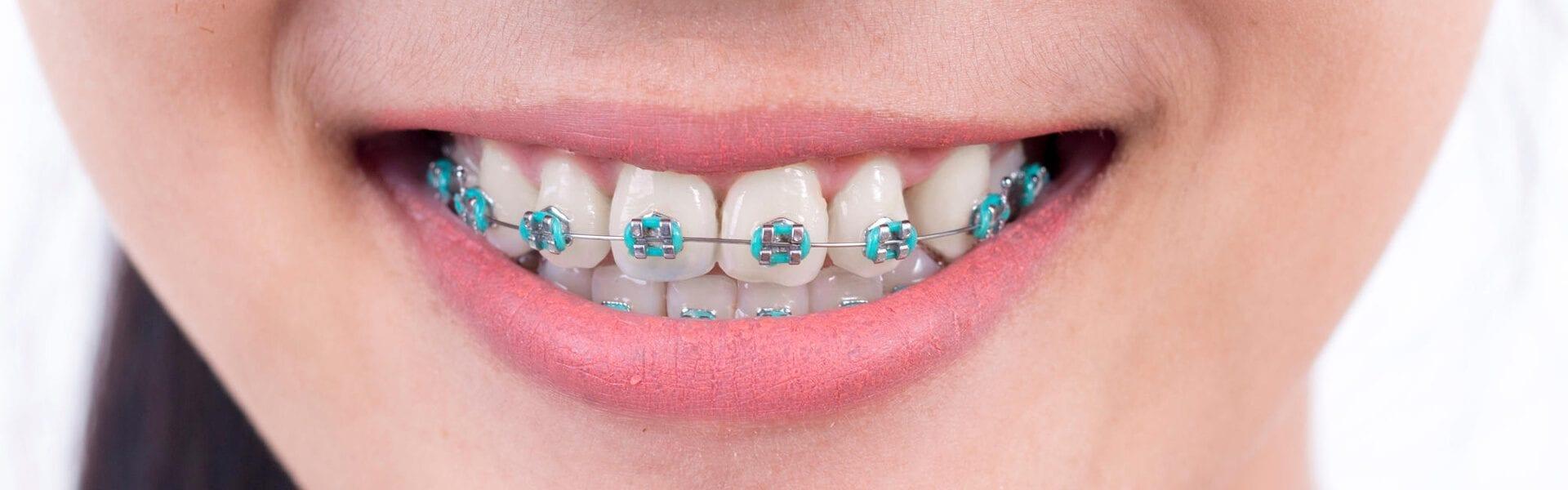 The Benefits of Damon™ Smile Braces